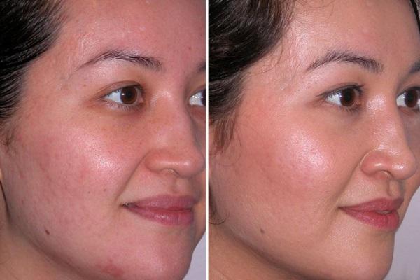 До и после курса криотерапии лица
