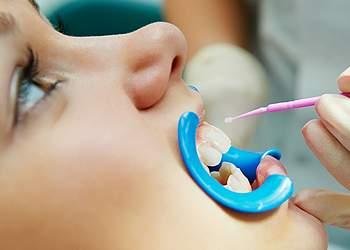 Глубокое фторирование зубов у детей не опасно ли?