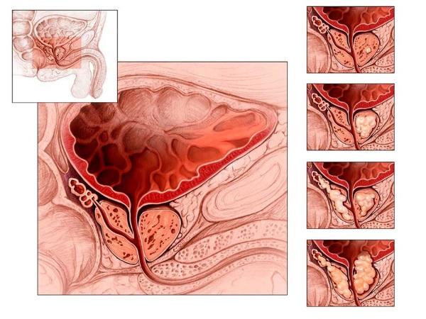 Кальцинаты предстательной железы