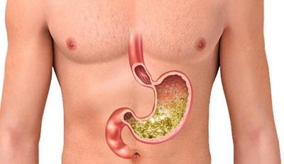 О вреде курения при гастрите желудка: почему нельзя курить человеку с этой болезнью?