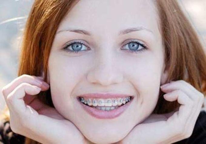 Почему у вас желтые зубы? Причины могут быть разными