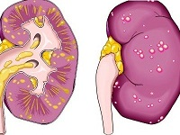 паранефрит