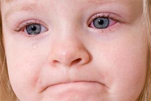 Причины воспаления глаза у детей