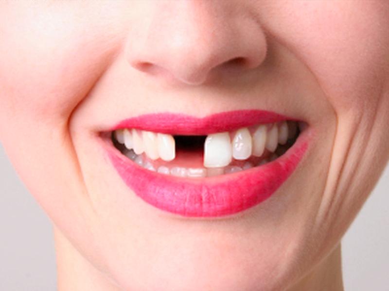 Методы лечения кисты зуба без удаления. Что будет, если не лечить
