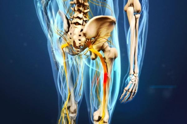При защемлении седалищного нерва лучшие результаты дает комплексная терапия