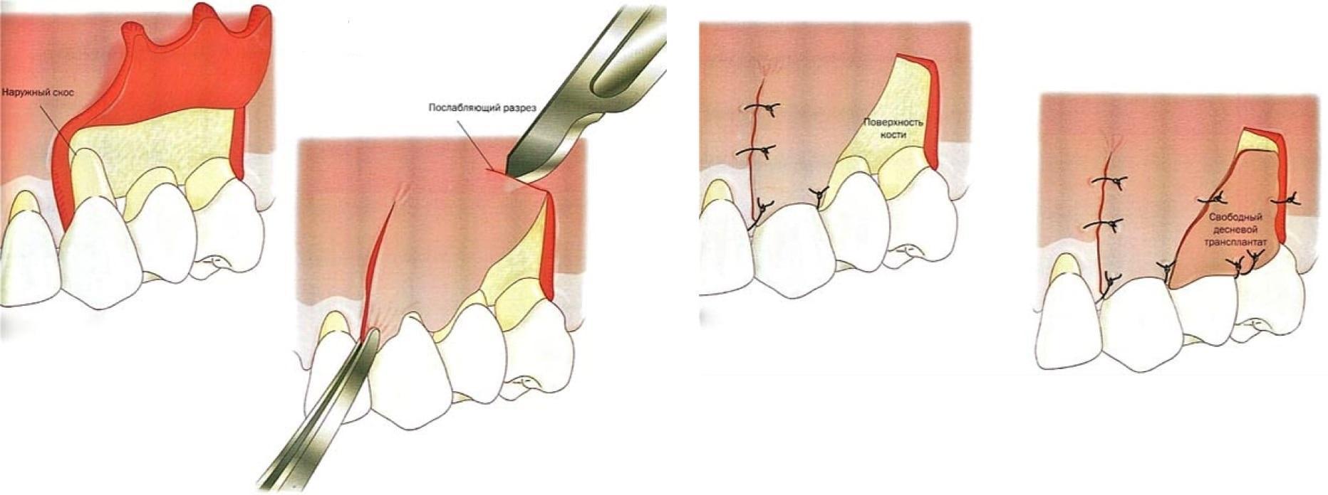 Что такое кюретаж пародонтального кармана в стоматологии
