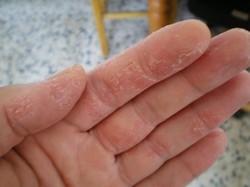 Шелушение кожи рук