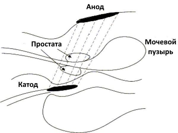 Ректальный электрофорез