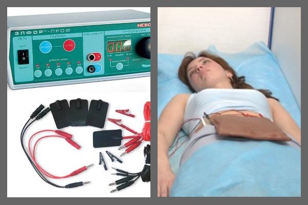 Электрофорез с успехом применяется в гинекологии