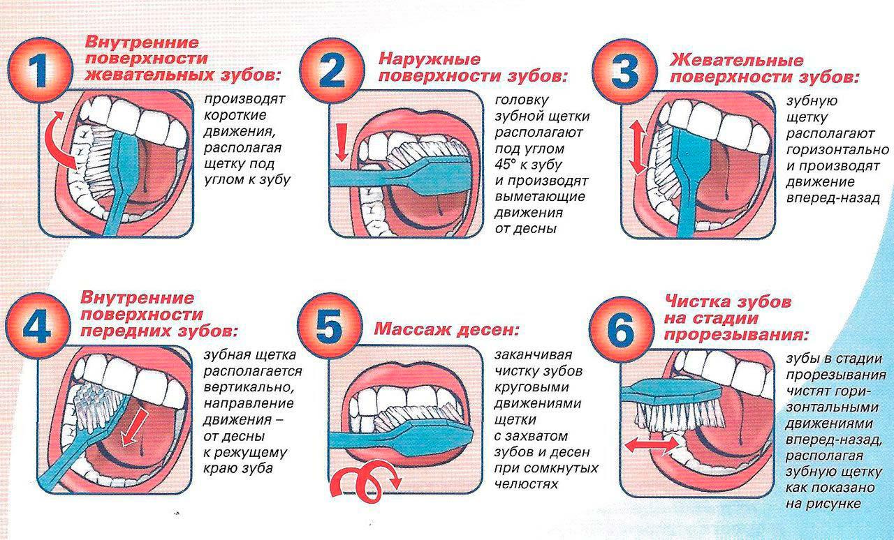 Что такое зубной камень. Три способа удаления твердых отложений на зубах