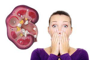мочекаменная болезнь симптомы и лечение у женщин