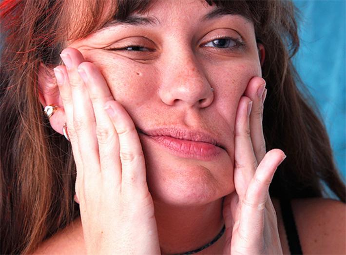 Почему возникает парестезия после удаления зуба мудрости, и как побороть онемение. Потеря чувствительности не приговор
