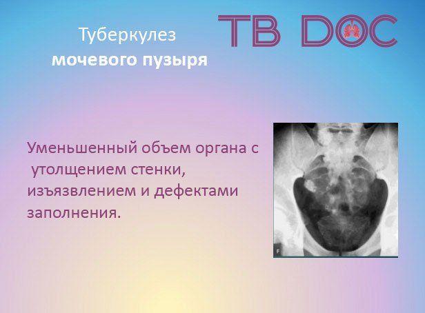 Мочевой пузырь поражен туберкулезом