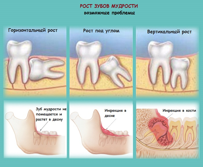 Страхи перед походом к стоматологу больно ли удалять зуб мудрости