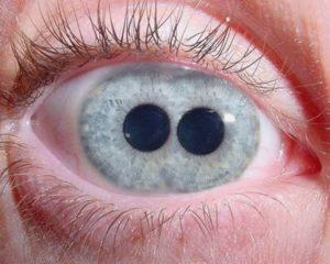 Два зрачка в одном глазу
