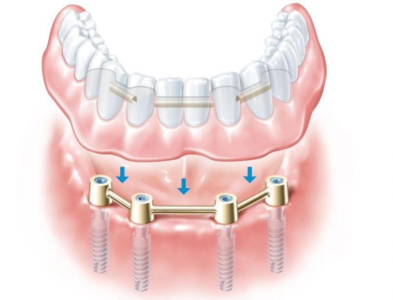 Что такое имплантация зубов и как она делается. Обзор методов вживления зубов