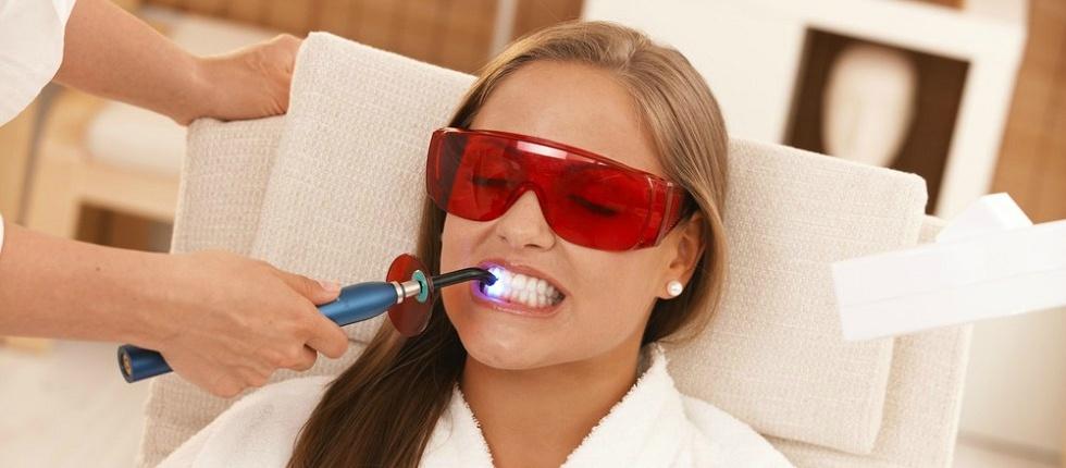 Средства и способы для профессионального и самостоятельного отбеливания зубов.