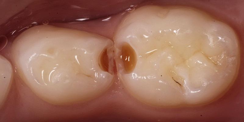 Детская стоматология болят ли молочные зубы у детей