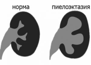 как лечить пиелоэктазию левой почки