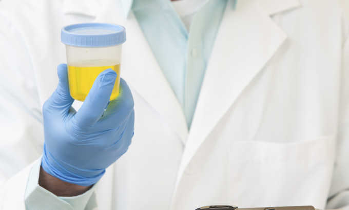 При остром панкреатите в моче появляется амилаза