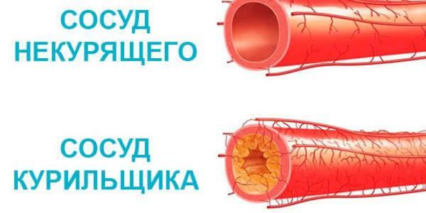 Курение и кровеносная система: как вредная привычка влияет на сосуды?