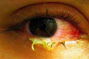 Что делать, если гноятся глаза