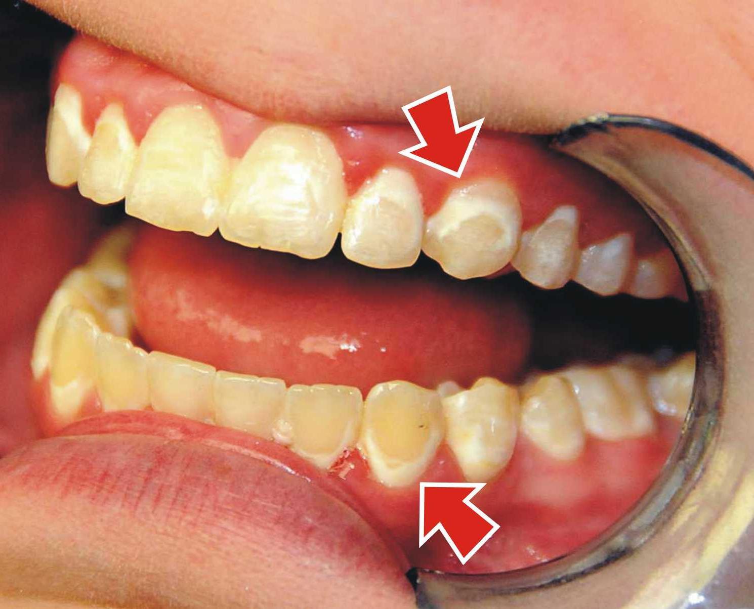 Не делайте этого в домашних условиях! Как снимать брекеты с зубов, и больно ли это