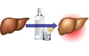 рисунок здоровой печени и после алкоголя
