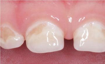 Гипоплазия эмали молочных зубов у ребенка причины и лечение