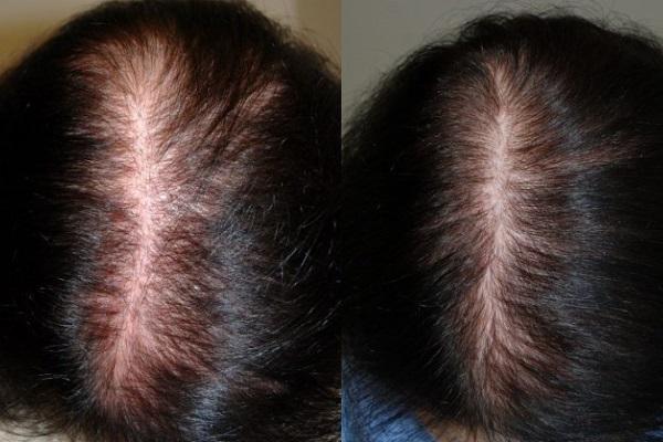 До и после курса криомассажа головы