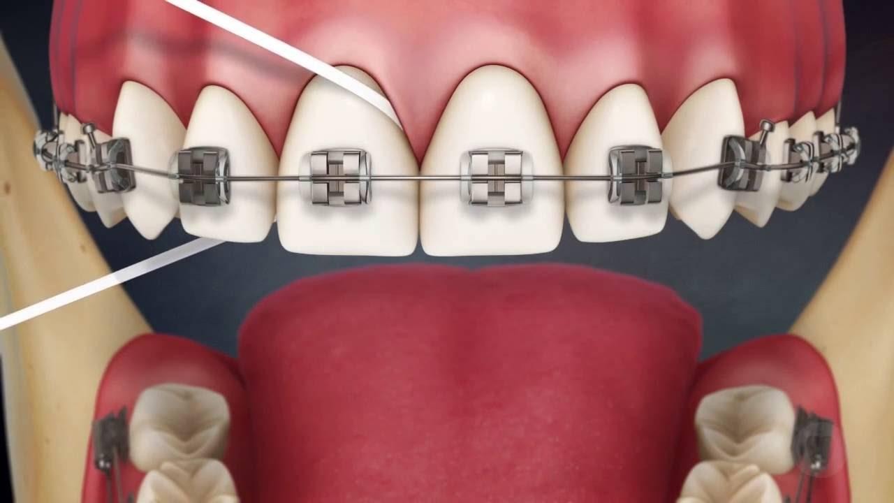 Как правильно чистить зубы с брекетами? Поможет ли делу гигиены зубная нить и специальная паста