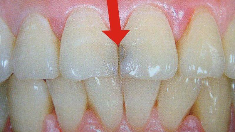 Лечение кариеса между зубами. Спасаем красоту передних зубов