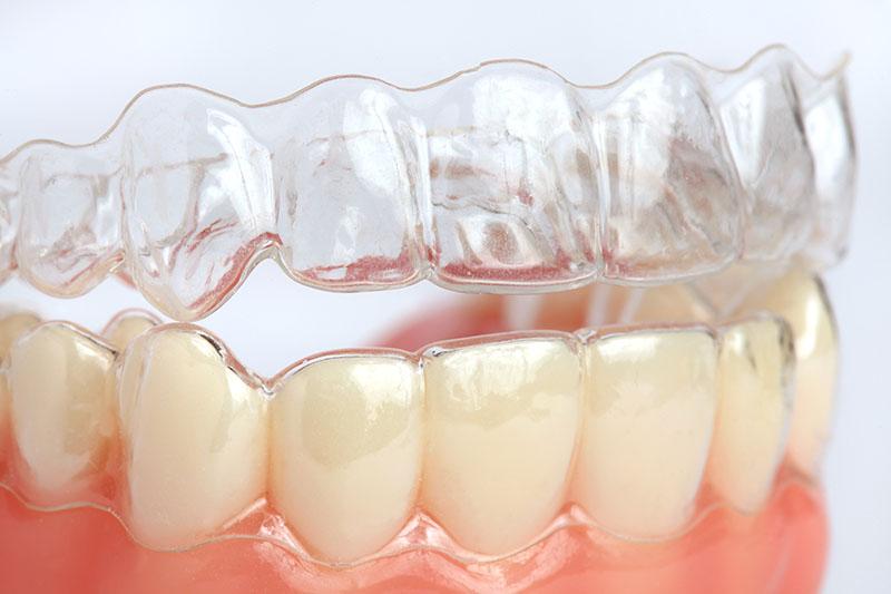 Можно ли выровнять зубы без брекетов. Скажем нет кривой улыбке без лишних жертв