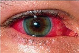 симптомы отравления ацетоном фото