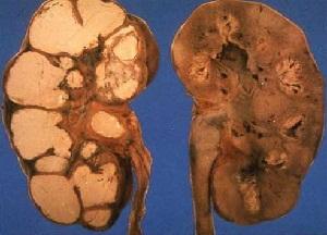 методы лечения туберкулеза почек