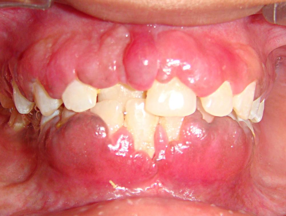 Что такое фиброматоз или гиперплазия дёсен. Причины и лечение разрастания десны