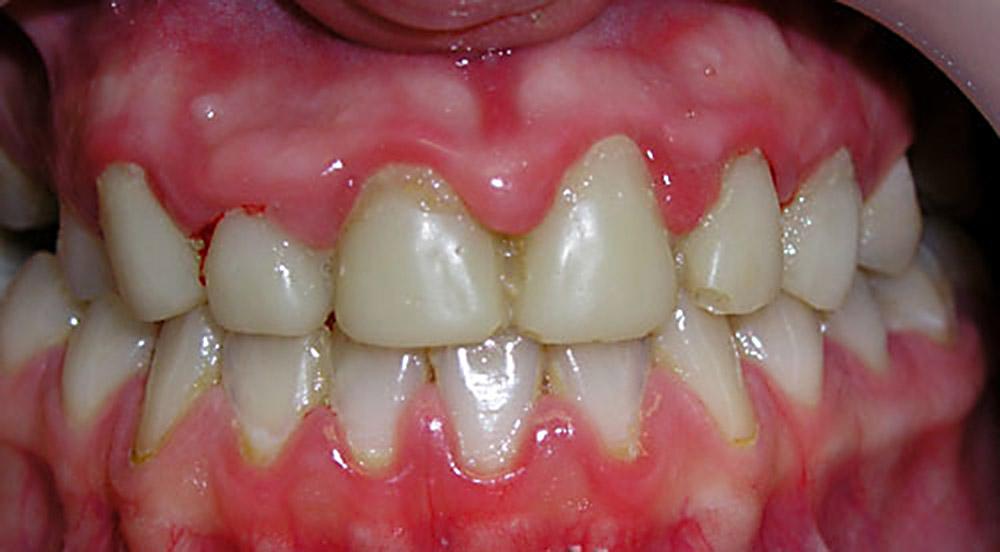 Красная зубная щетка? Симптомы и лечение острого гингивита у детей и взрослых.