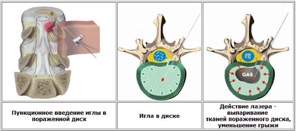 Методика лазерного лечения грыжи позвоночника