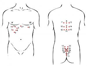 гирудотерапия — точки присасывания пиявок схемы