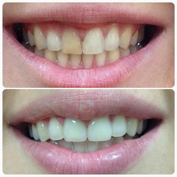 Ваша улыбка не идеальна, и на зубы больно смотреть? Обратите внимание на фарфоровые виниры