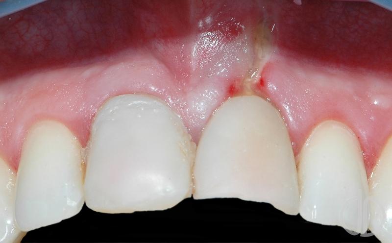 Узнайте основные правила того, как укрепить десны в домашних условиях, если шатаются зубы