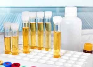 как лечить повышенные лейкоциты в моче ребенка