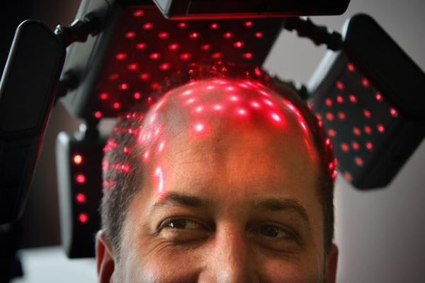 Лазеротерапия волос
