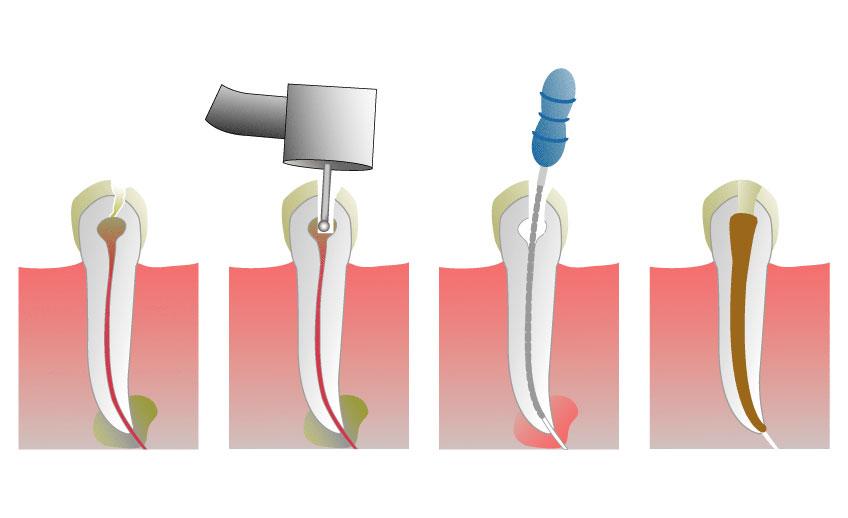 Лечение и чистка каналов зуба: а не больно ли это? Почему зверь не так страшен