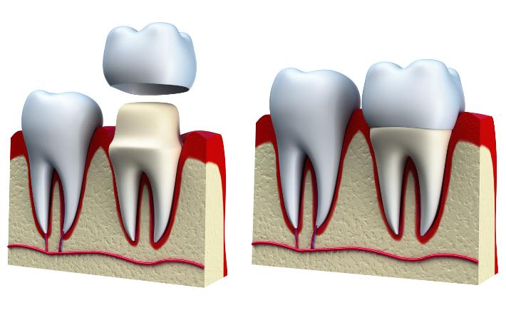 Возможно ли протезирование зубов во время беременности