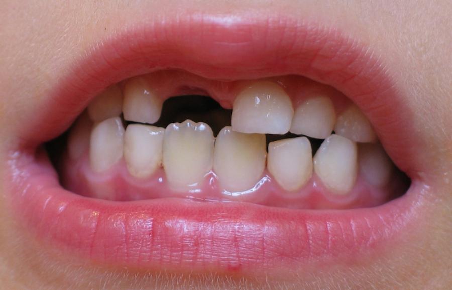 Молочные зубы выпали а новые не растут надо ли бить тревогу?