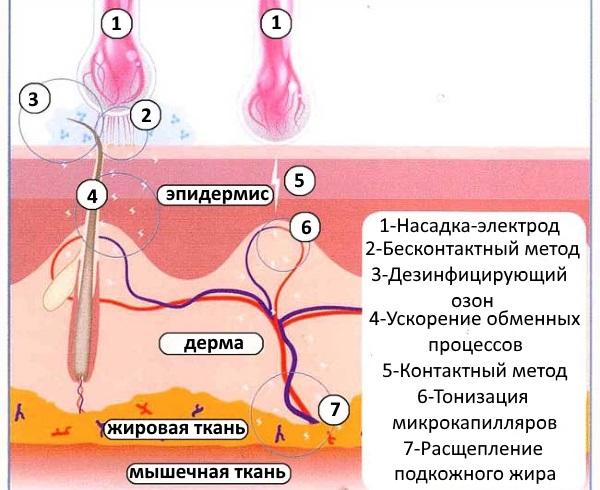 Механизм действия дарсонваля