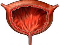 атония мочевого пузыря