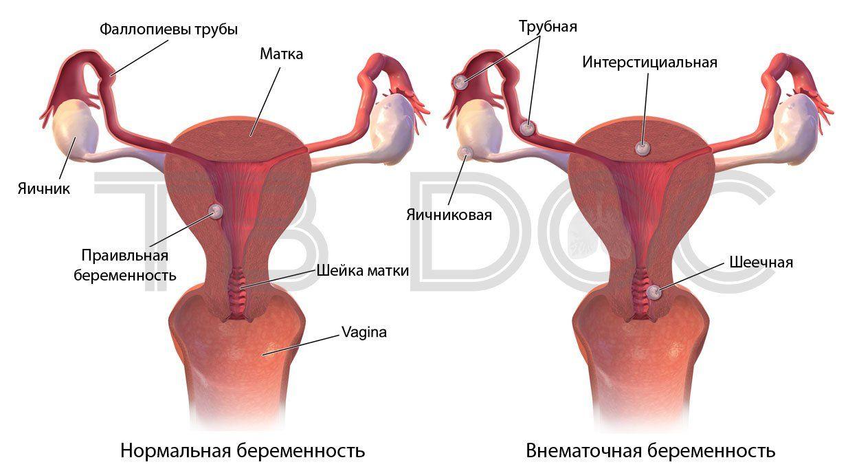 Какой бывает внематочная беременность