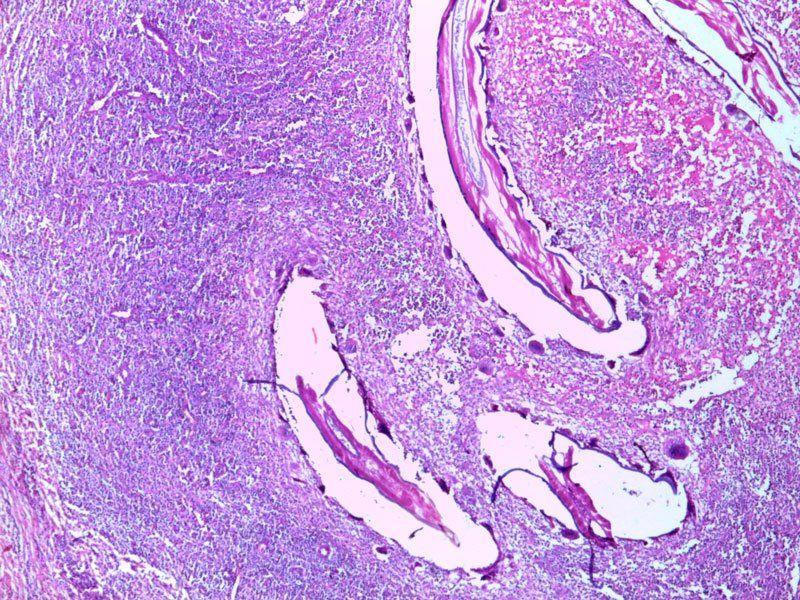 Лимфаденит под микроскопом